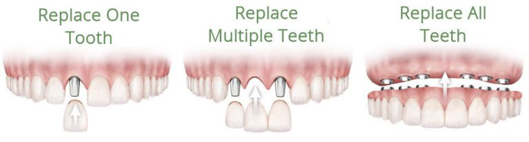 Dental Implants options for different numbers of teeth