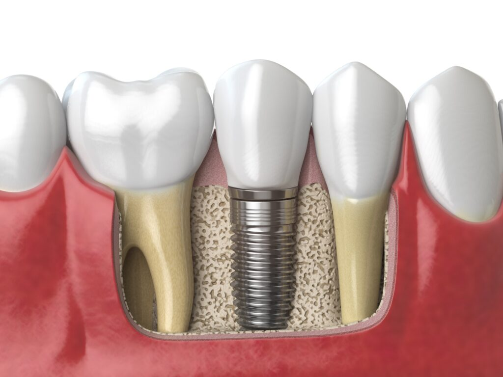 The steps and procedure for dental implants